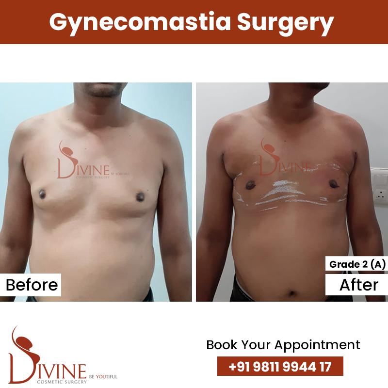 gynacomestia 12