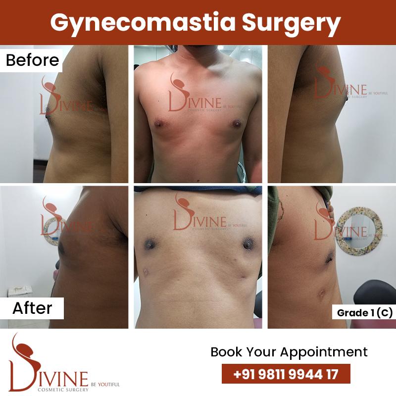 gynacomestia 2