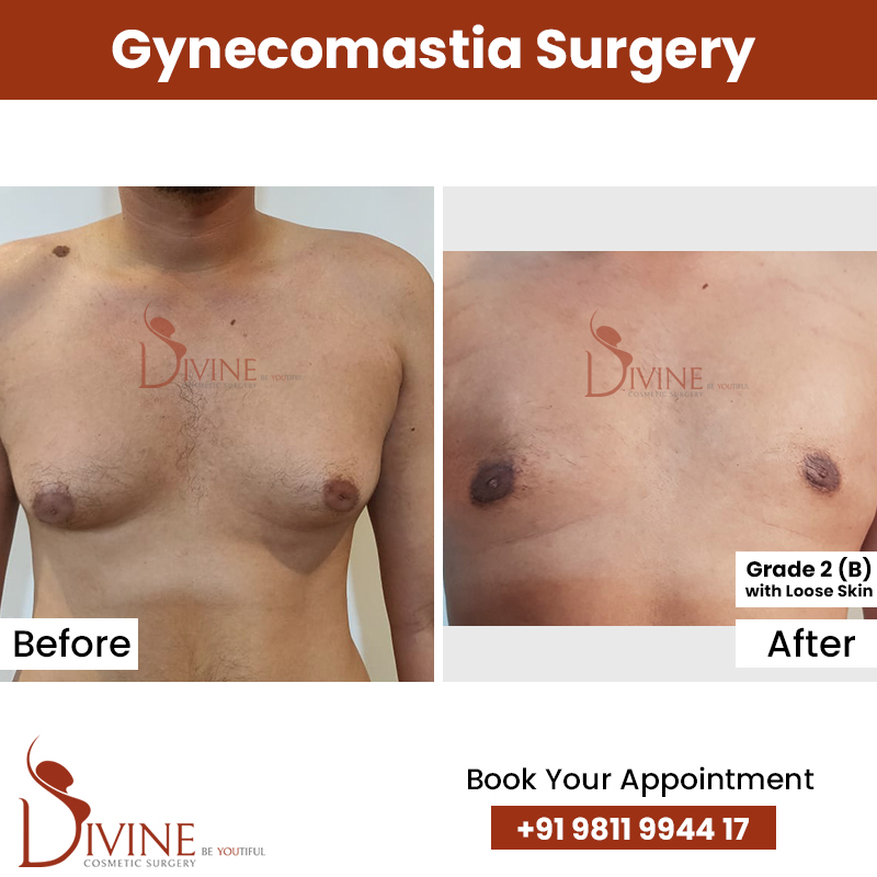 gynacomestia 6