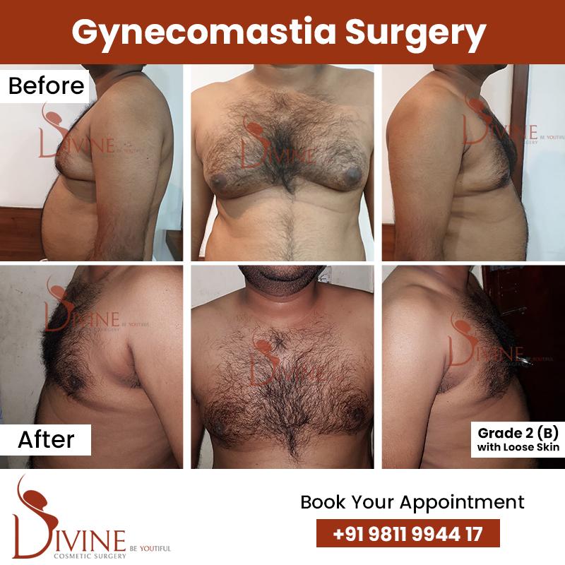 gynacomestia 7