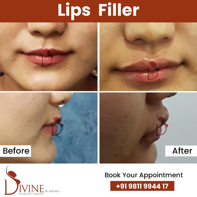 lips8