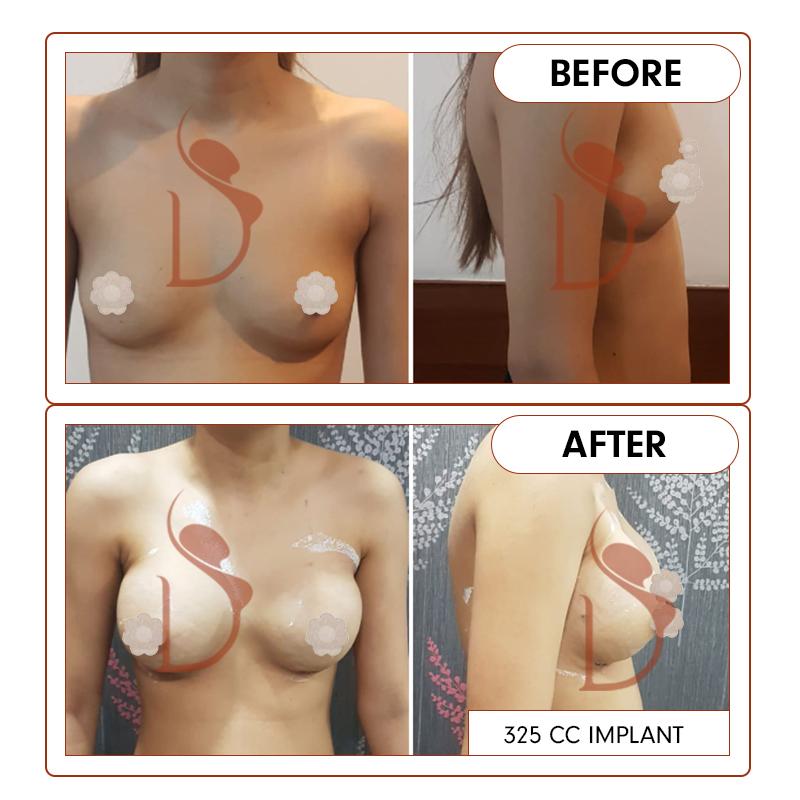 breast38