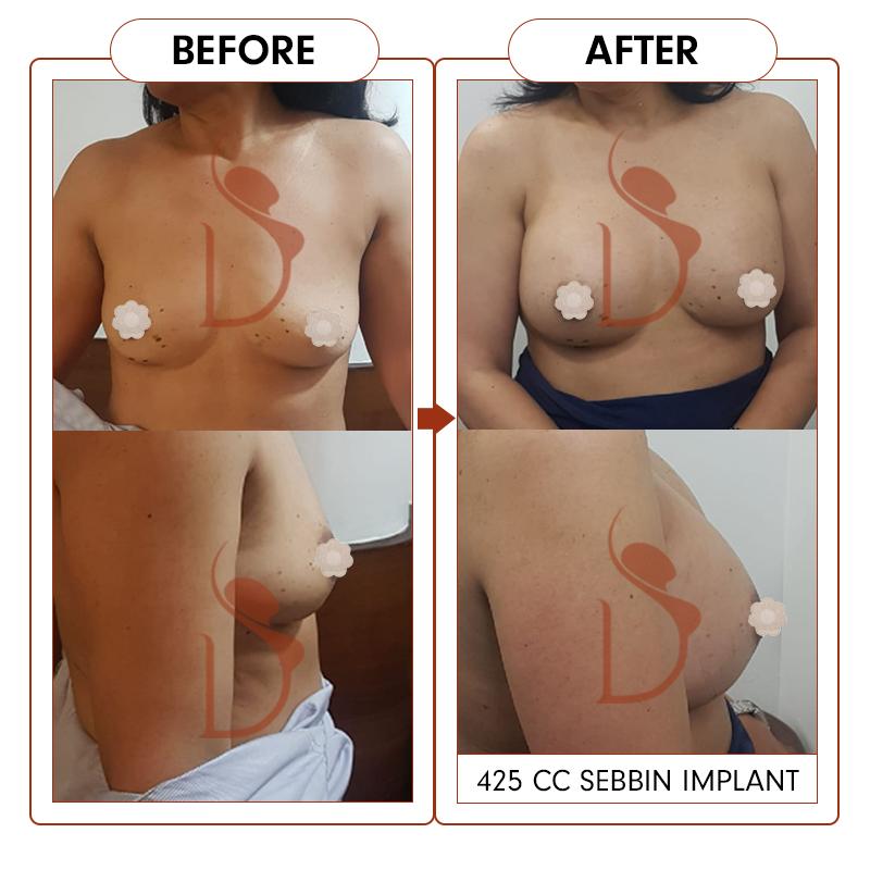 breast19