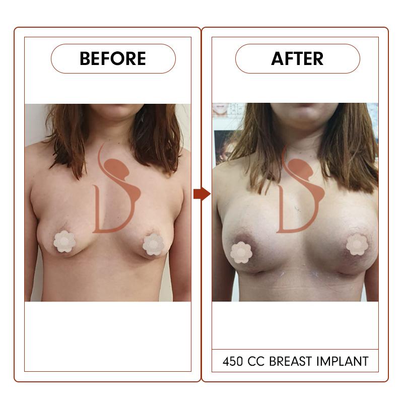 breast20