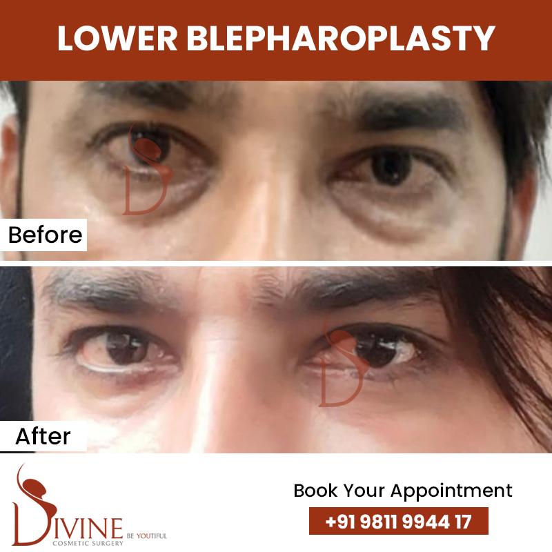 blephaplasty 9