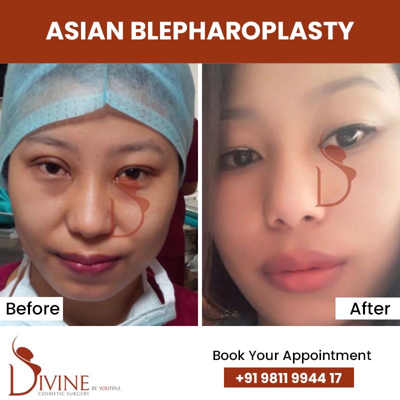 blephaplasty 1
