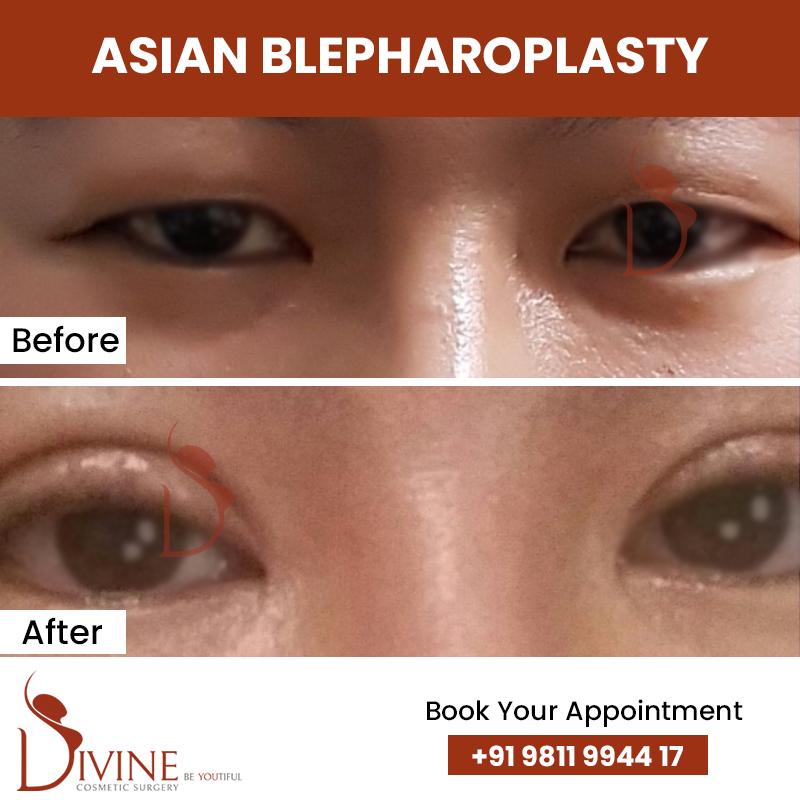 blephaplasty 2