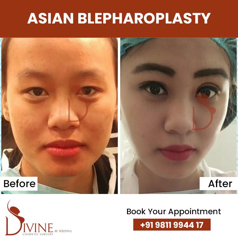 blephaplasty 3