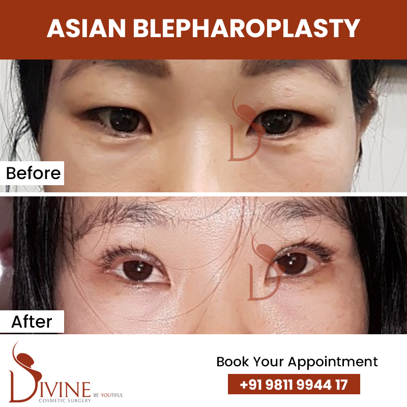blephaplasty 5