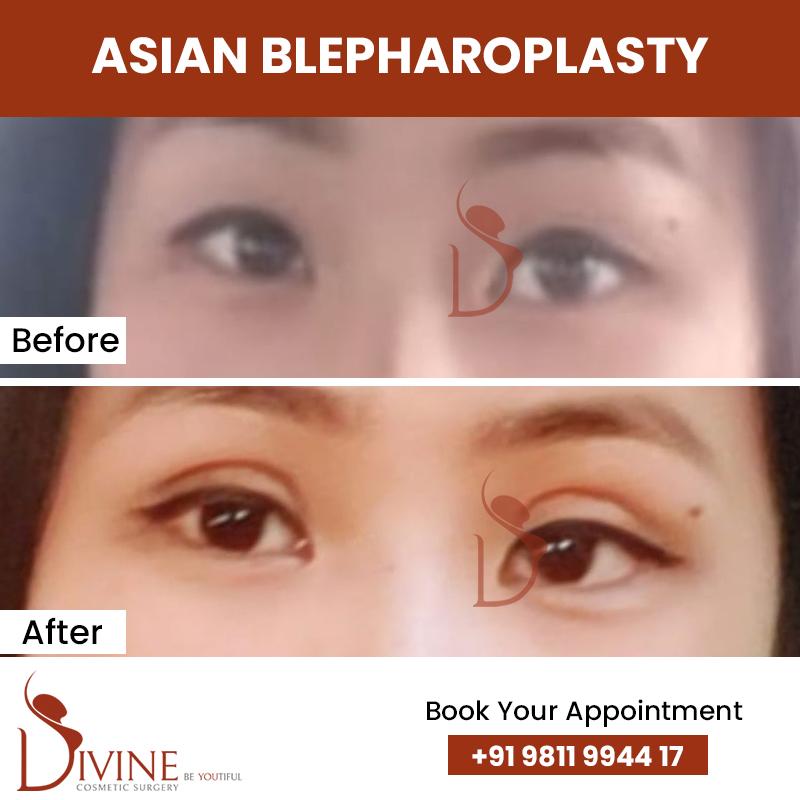blephaplasty 6