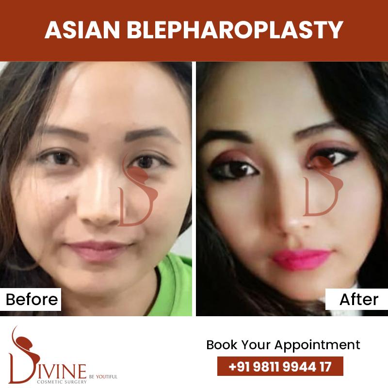 blephaplasty 7