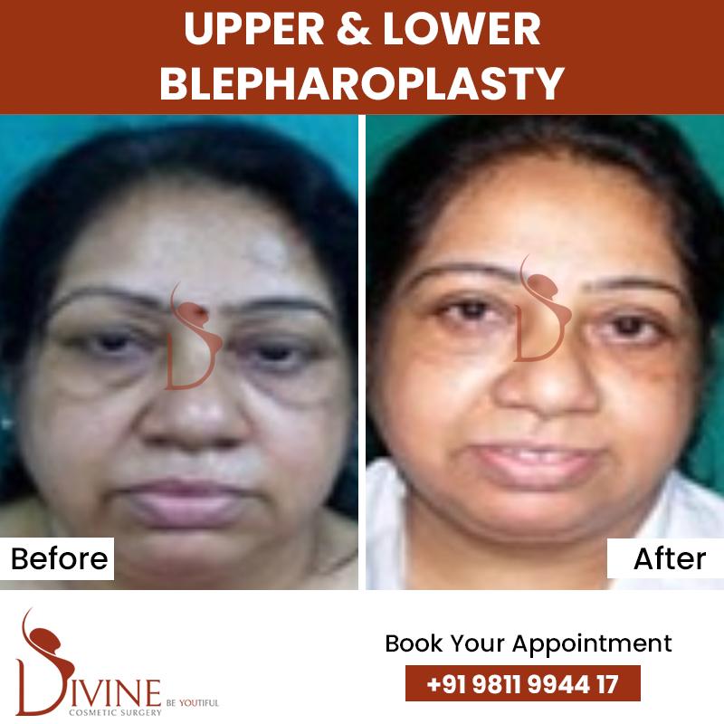 blephaplasty 11