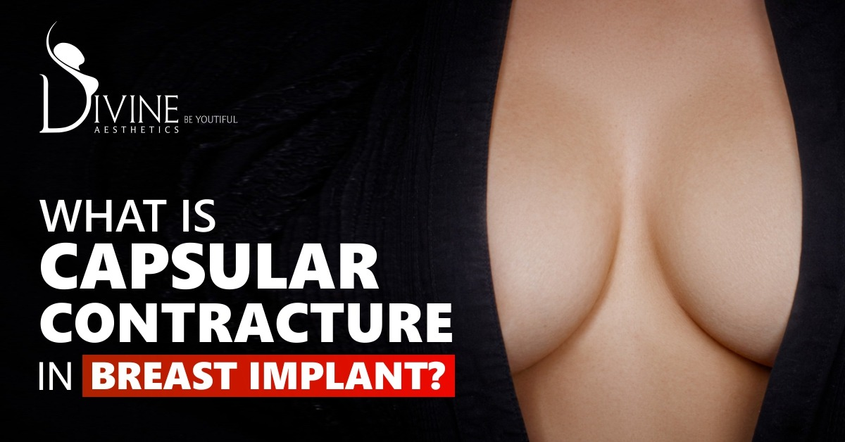 What is Capsular Contracture in Breast Implant?