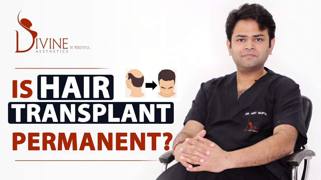 Is Hair Transplant Permanent