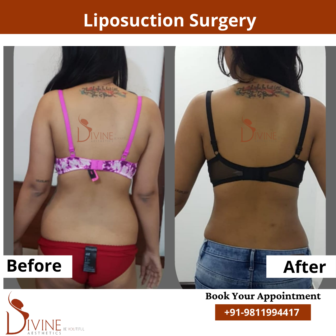 Back Liposuction before after