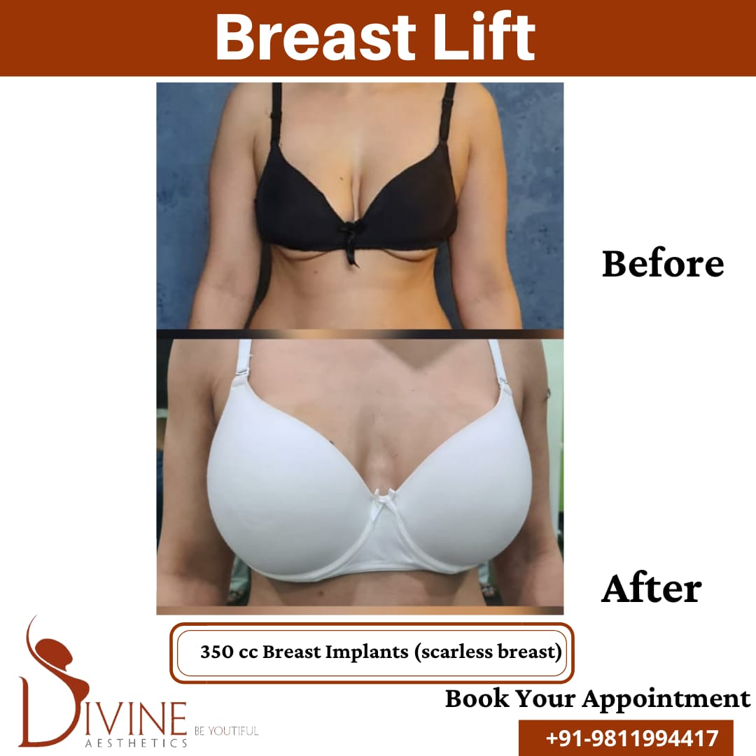 Breast Lift before after picture