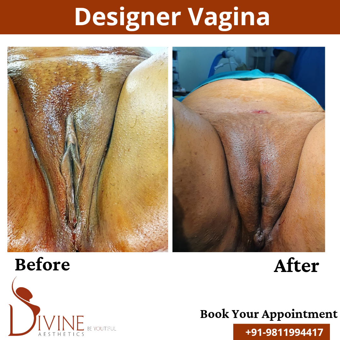 Designer Vagina Before After by Divine Cosmetic Surgery