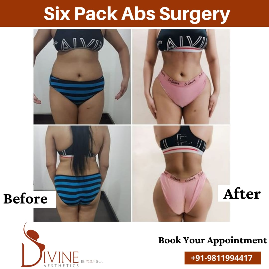 Female Six Pack Abs by Divine Cosmetic Surgery