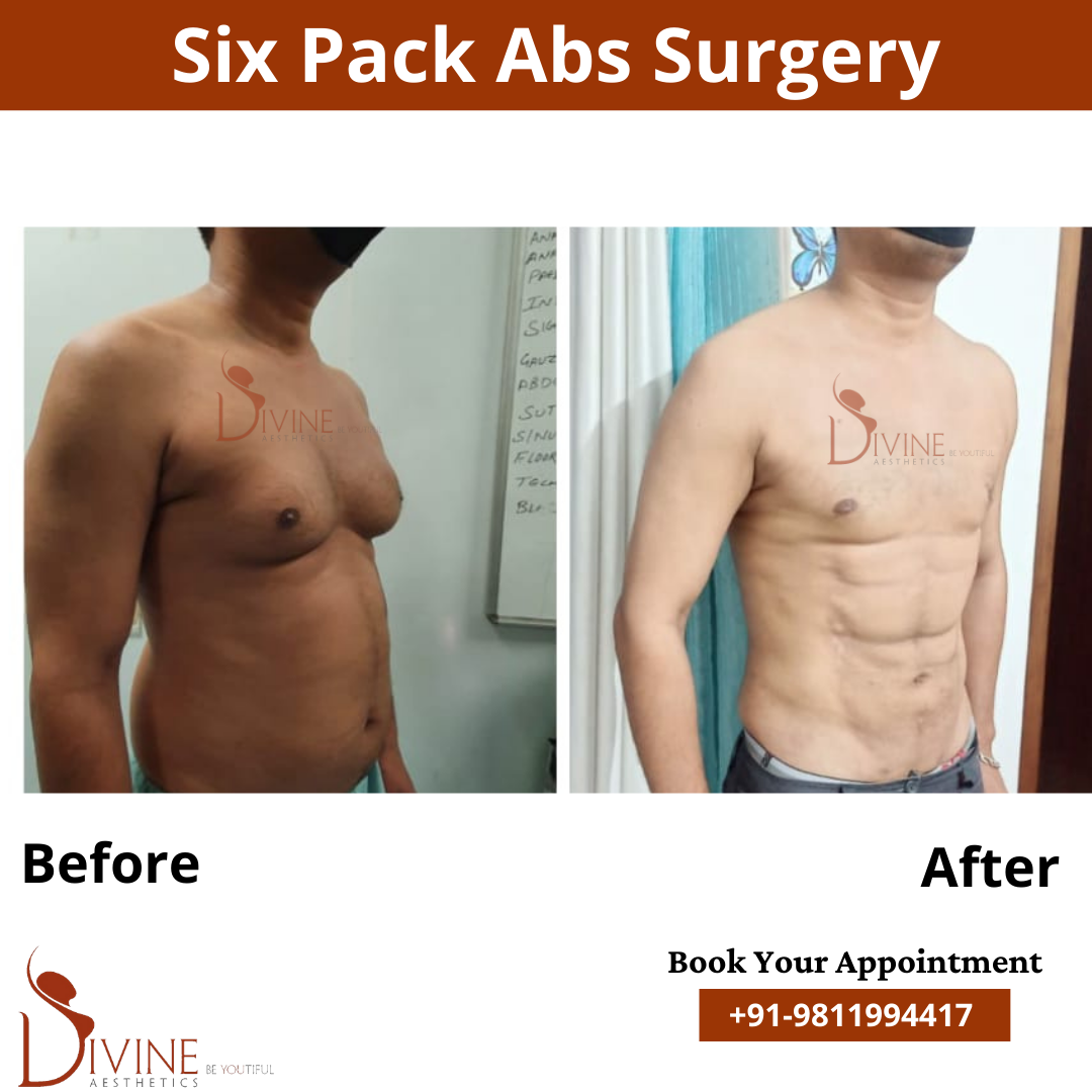 Male Six Pack Abs by Dr. Amit Gupta