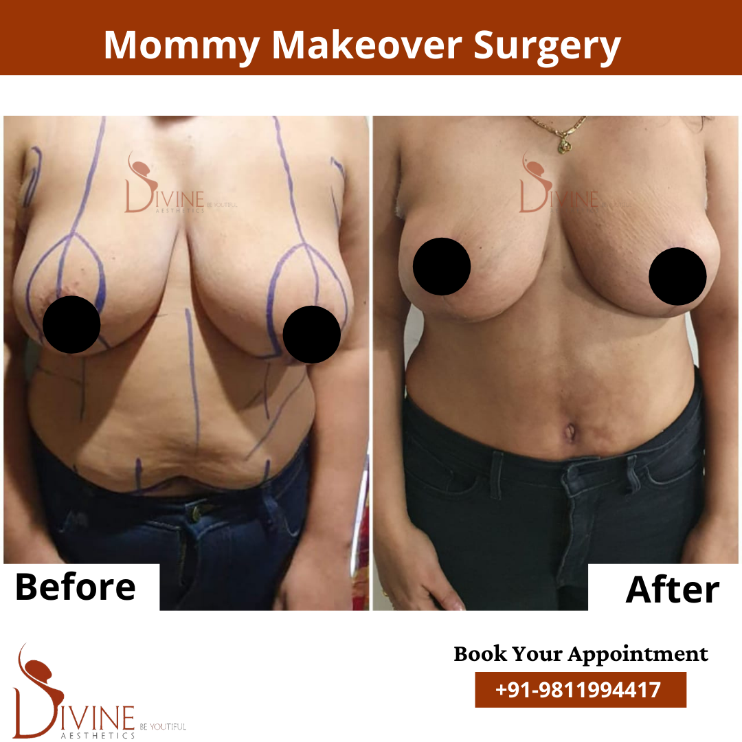 Mommy Makeover Before After results