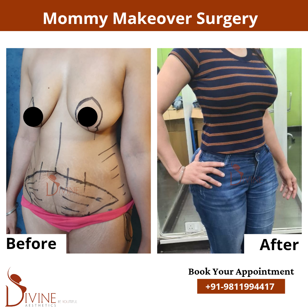 Mommy Makeover Before After