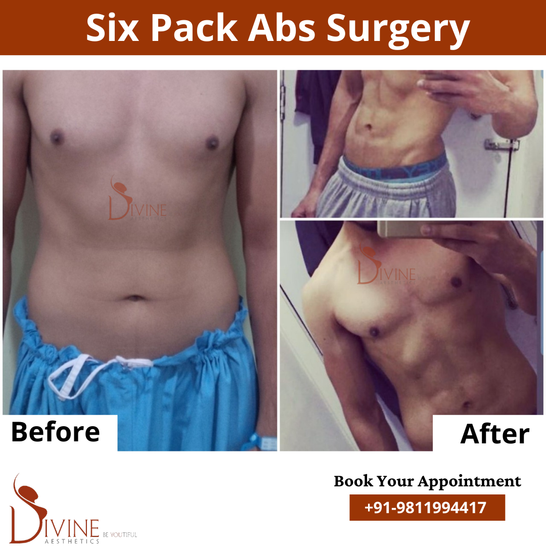 Six Pack Abs by Divine Cosmetic Surgery