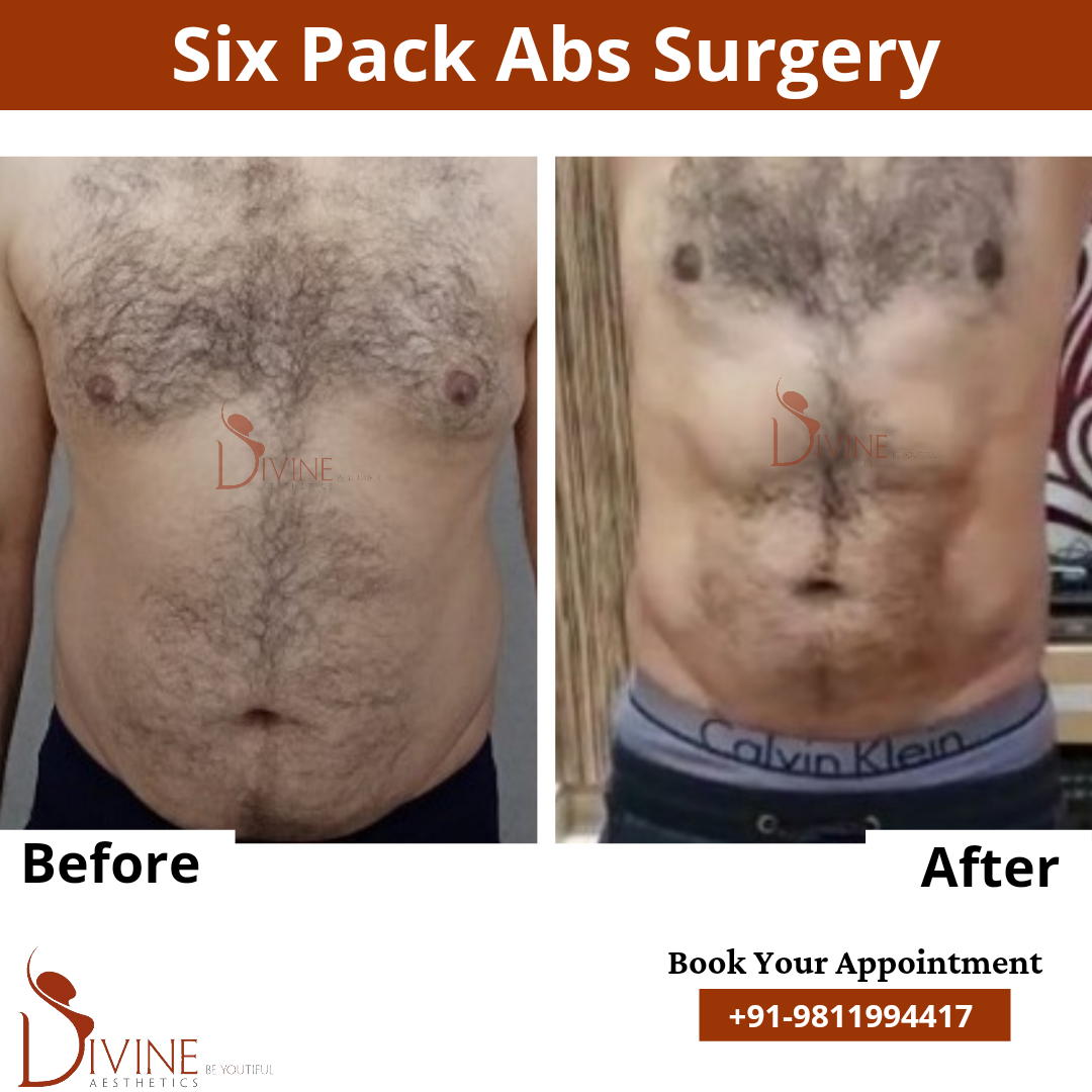 Six Pack Abs by Dr. Amit Gupta