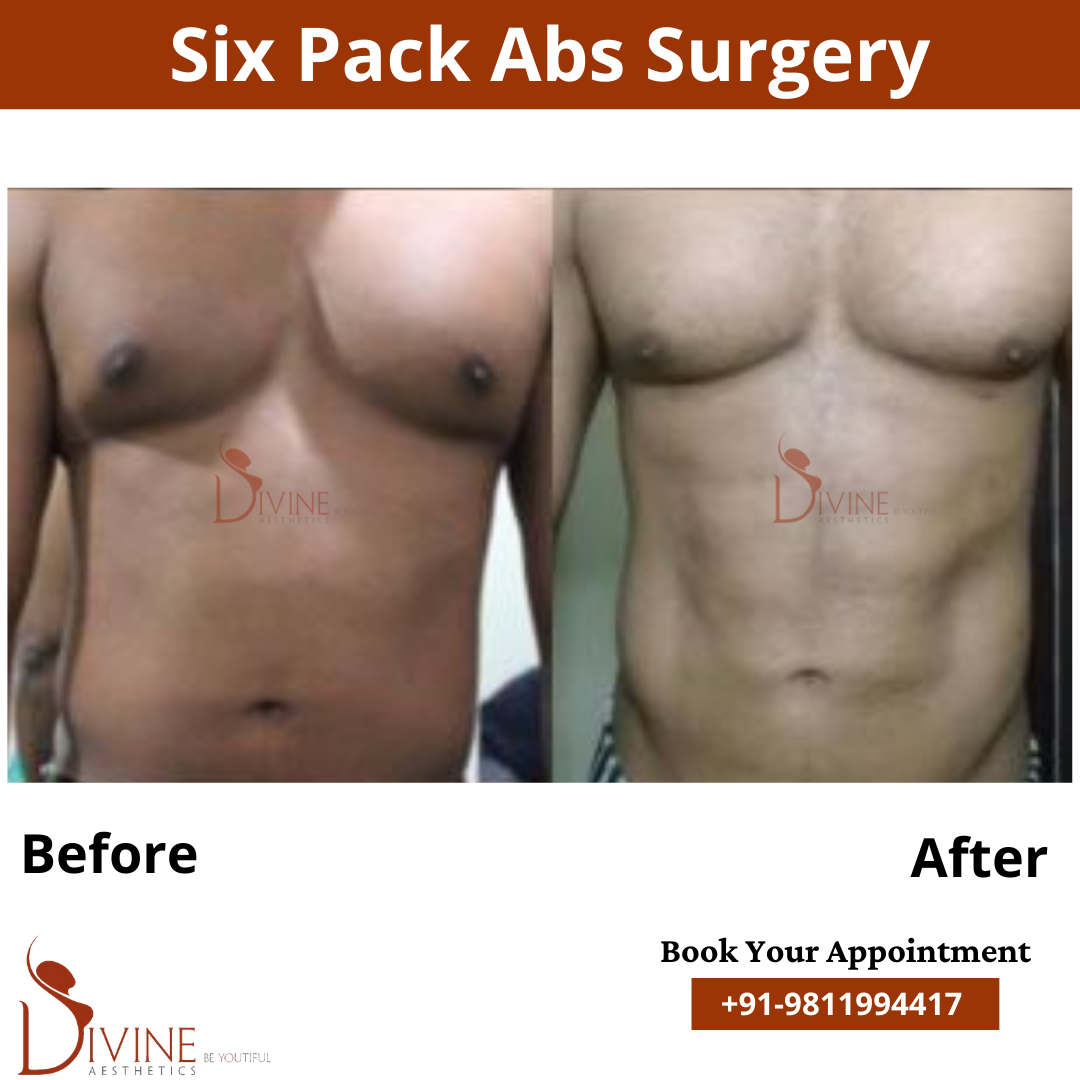 Six Pack Surgery by Divine Cosmetic Surgery