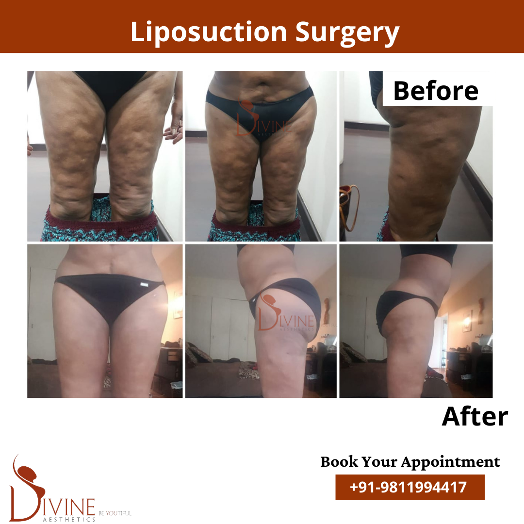 Thigh Liposuction Before After Results