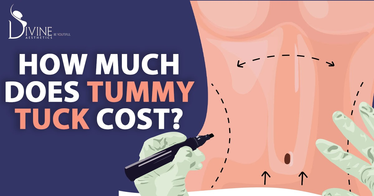cost of the tummy tuck surgery in India